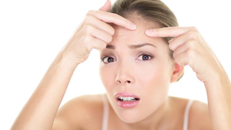 Coraz częściej do dermatologów zgłaszają się osoby dorosłe z trądzikiem, którego przyczyny nie są do końca poznane